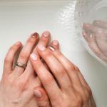 Breaking the nail biting habit